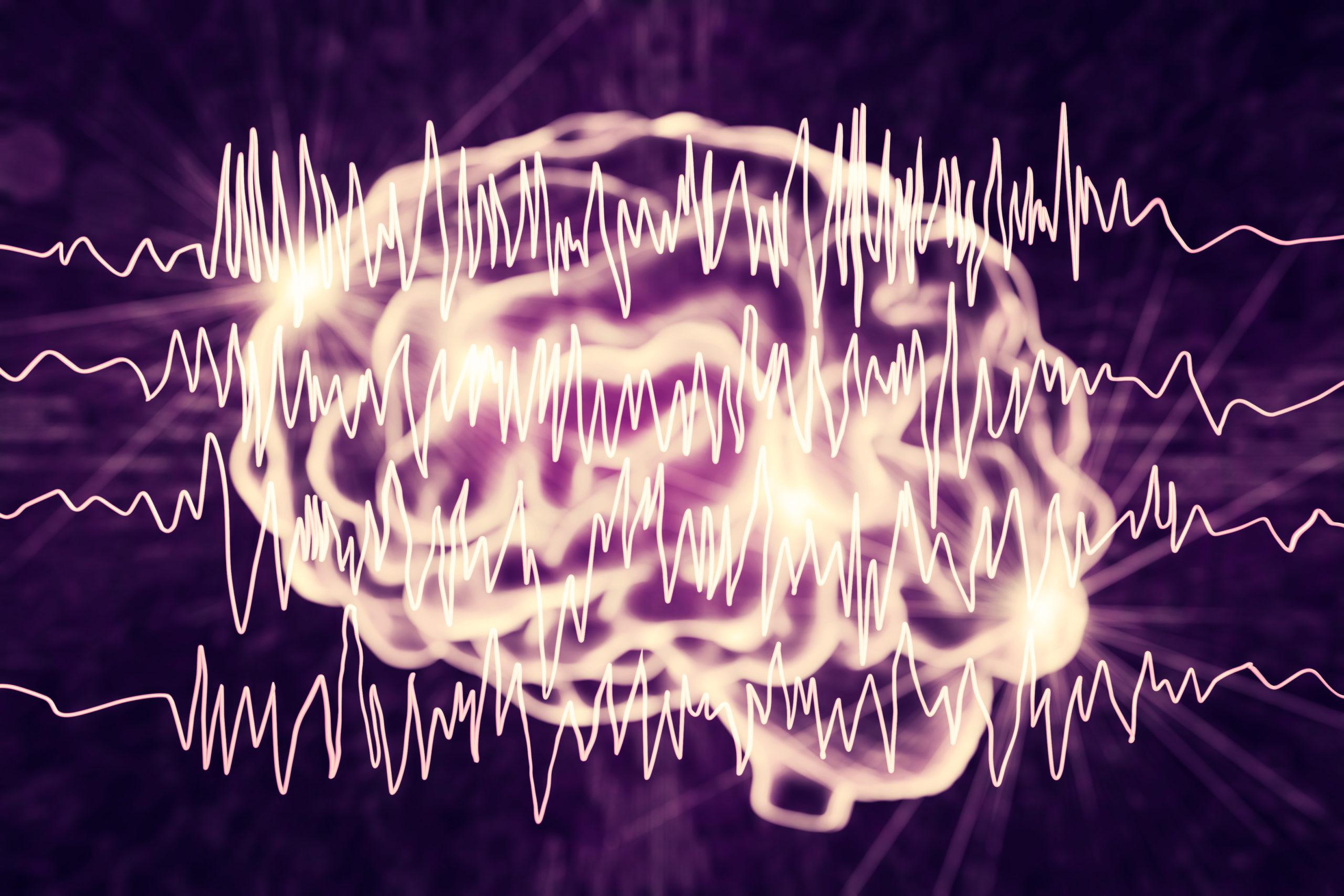 Epilepsie am Arbeitsplatz