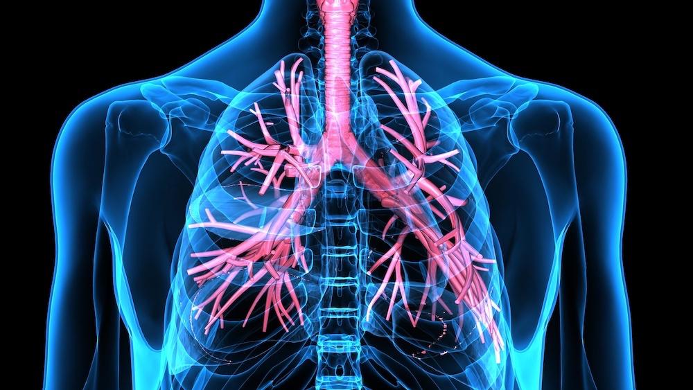 Lungenentzündung (Pneumonie)